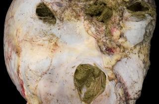 Alex Van Gelder (Meat Portrait #031, 2012)