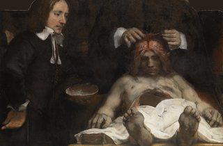 Rembrandt van Rijn ('The Anatomy Lesson of Dr Joan Deyman', 1656)