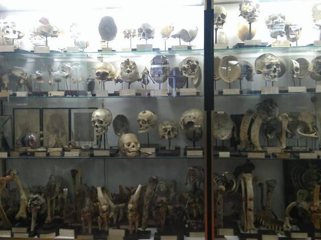 Musée Dupuytren, royaume des pathologies anatomiques
