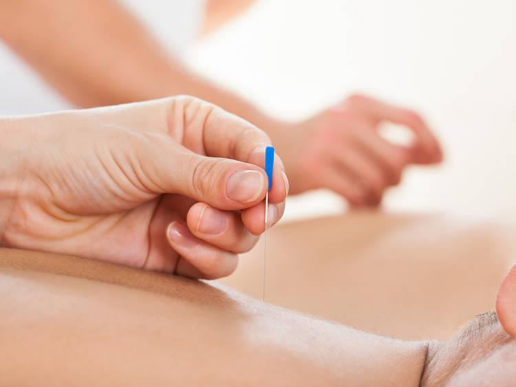 Naturopunc Acupuncture