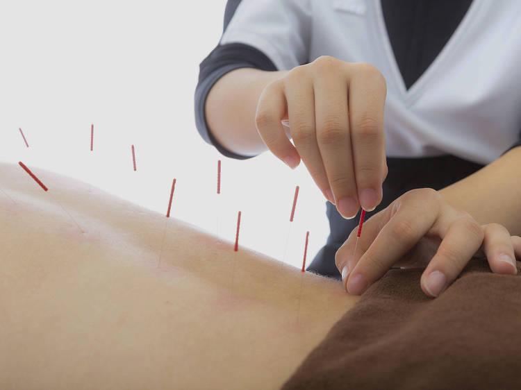 Revival Acupuncture