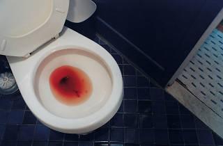Elinor Carucci, Menstrual period, 2000