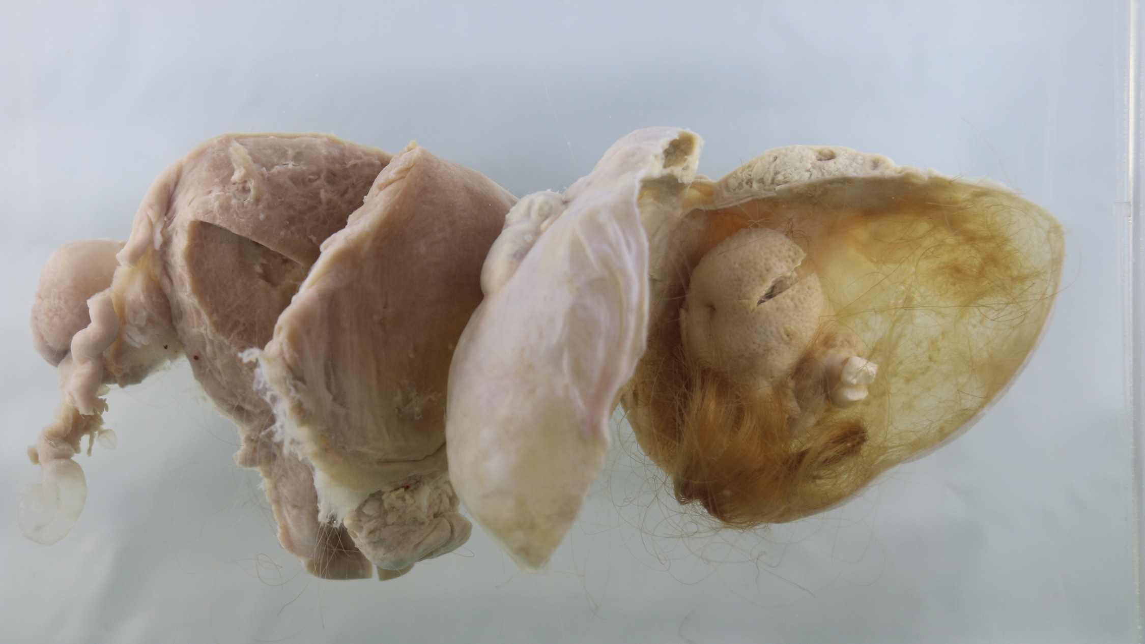 Teratoma, or 'monster tumour'; a benign tumour in an ovary that