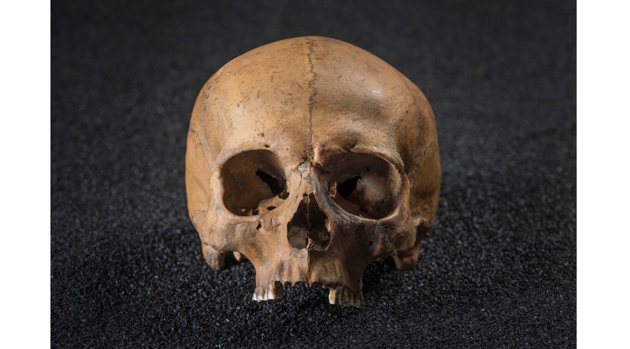 Roman Dead