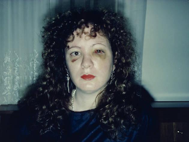 Nan Goldin, Nan One Month After Being Battered, 1984