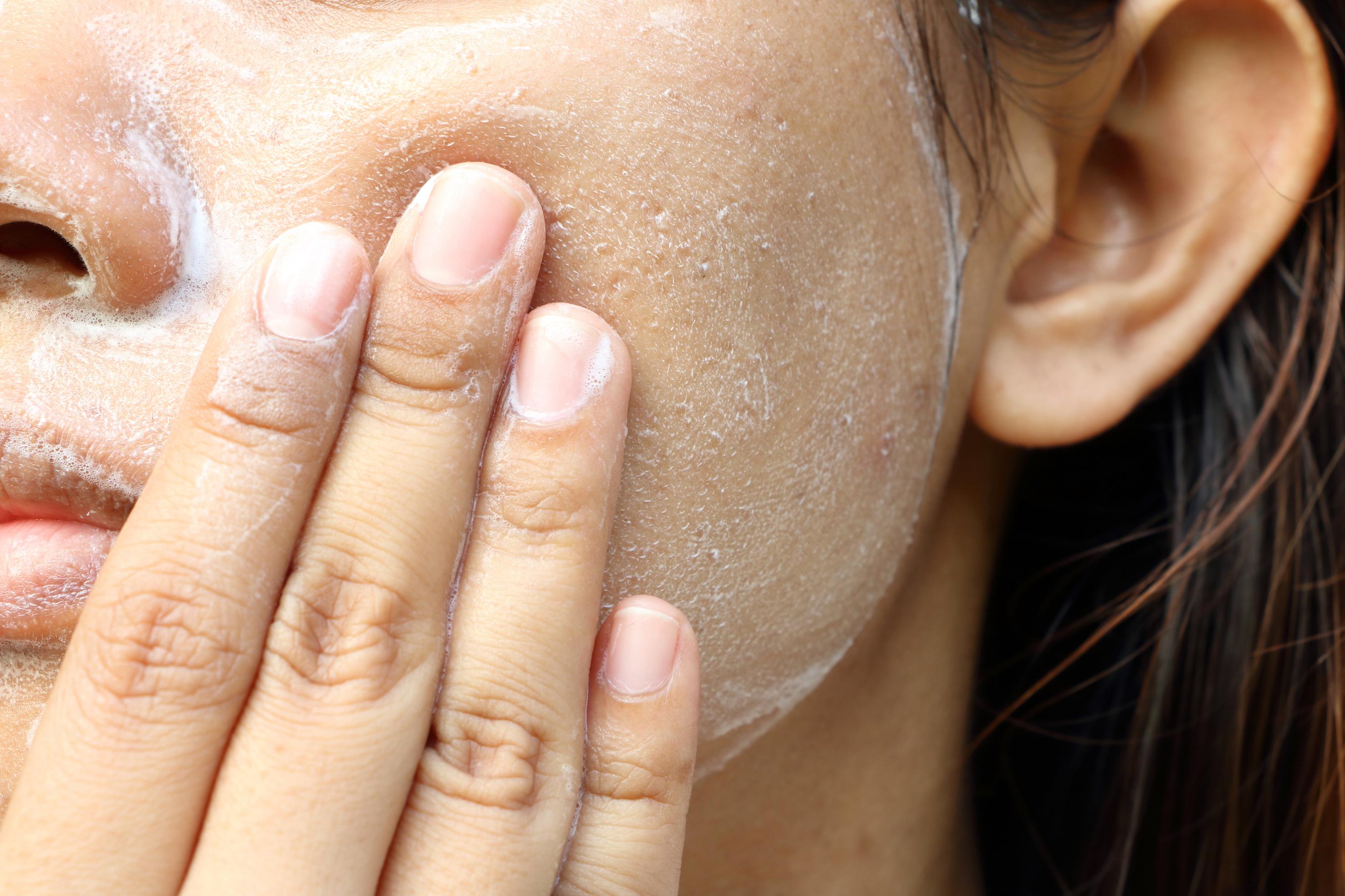 Limpieza exfoliación facial peeling