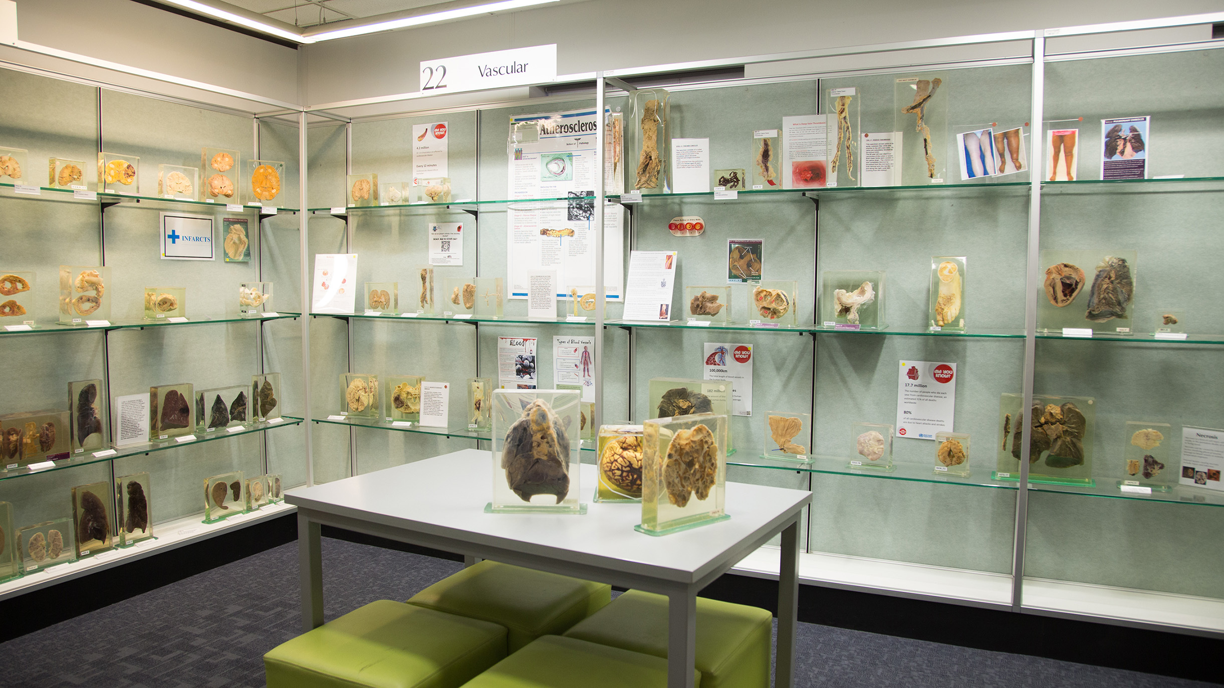 A view inside a museum filled with human specimens