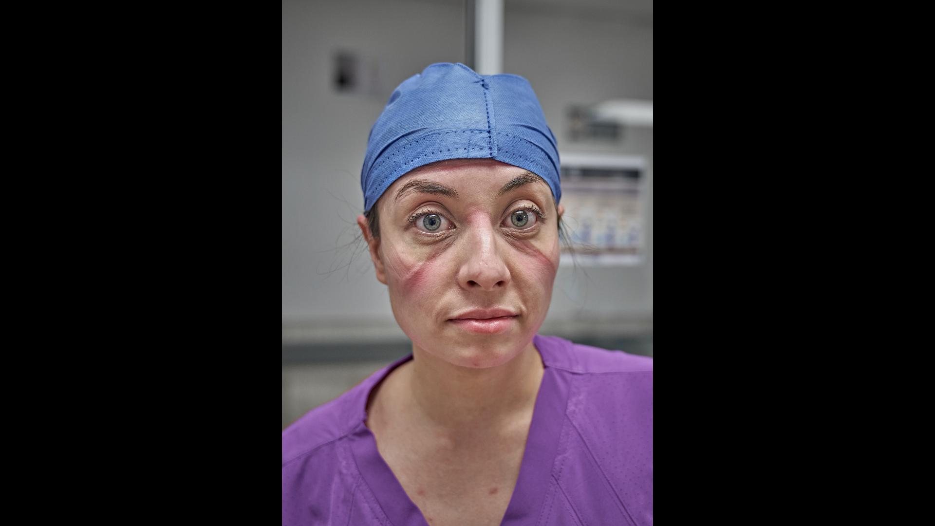 Foto de médico en sala de urgencias con bata quirúrgica y marcas en el rostro