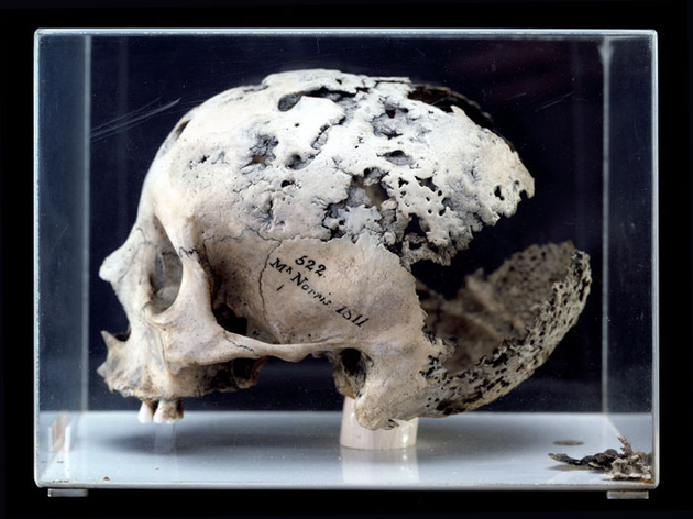 Syphilitic skull from Hunterian Collection.jpg