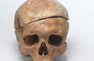 New_Dissected skull C Museum of London Archaeology.jpg